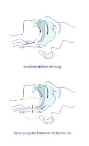 Atemwege bei Schnarchern